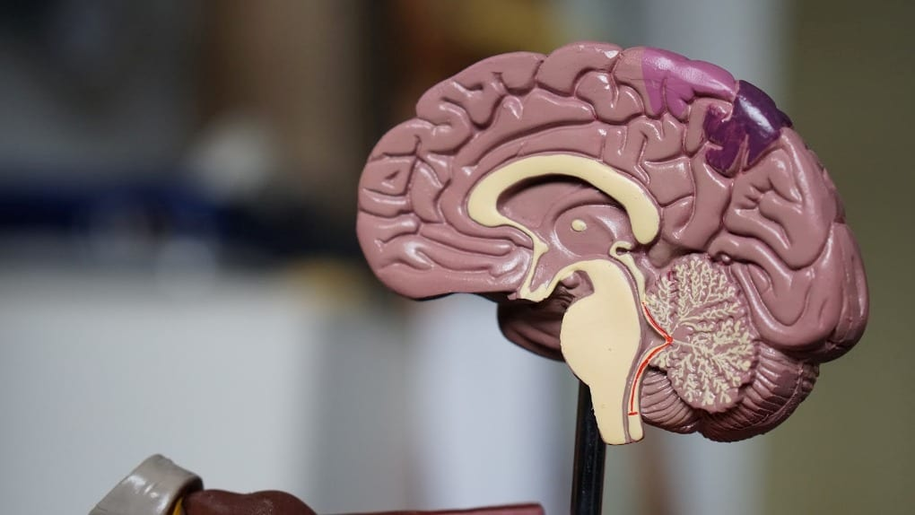 a 3D model of the brain
